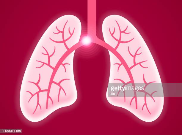 pulmonary embolism human lungs - respiratory system stock illustrations, clip art, cartoons, & icons