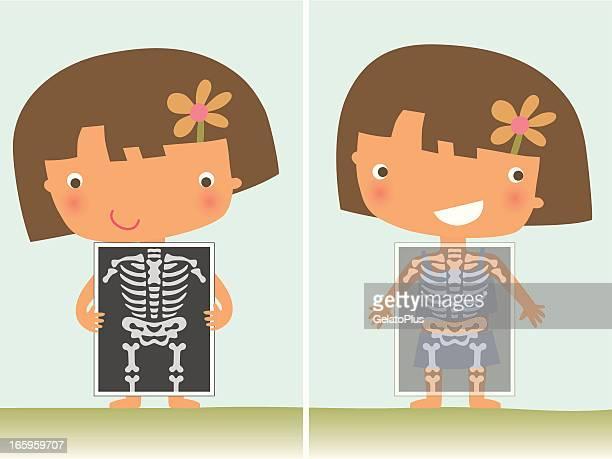 X 線の少女