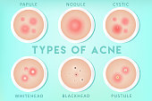 Realistic Acne types