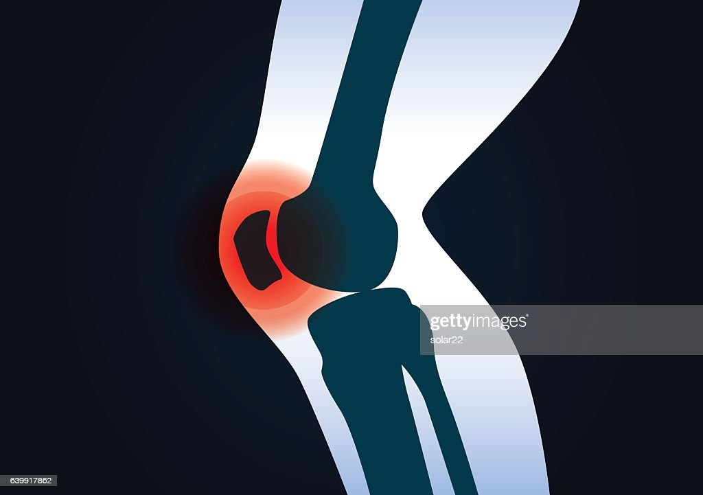 Red signal at knee area