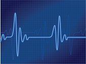 Representation of a cardiogram output in blue