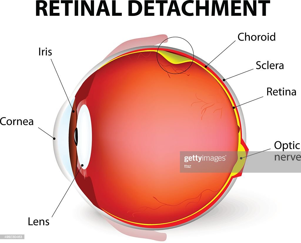 Retinal detachment. Vector diagram