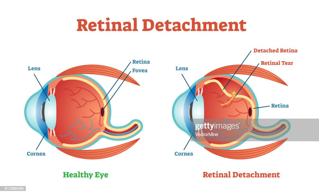Retinal Detachment vector illustration diagram, anatomical scheme.
