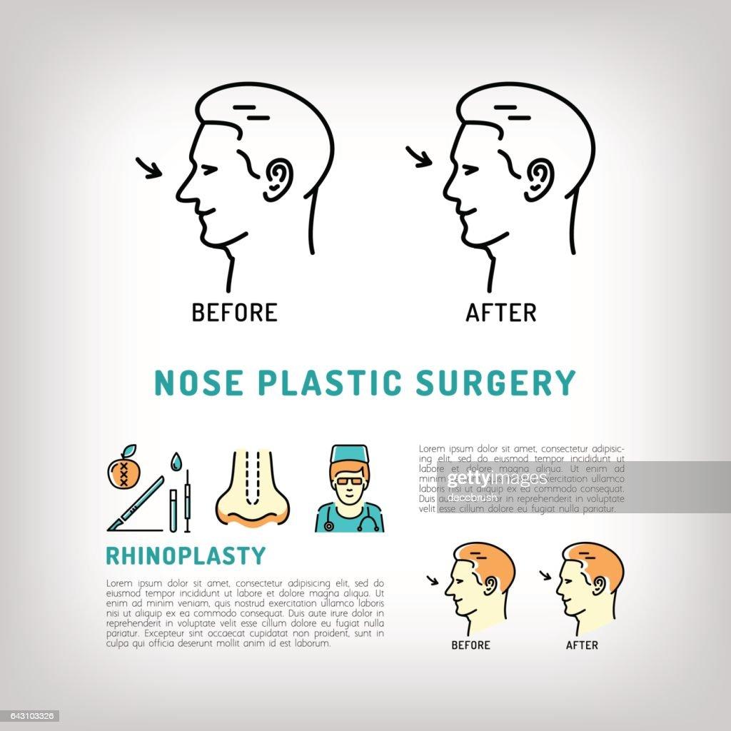 Rhinoplasty Nose Plastic Surgery logos Vector art line icons set