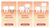 Set Inscription Dental Implants Crowns Veneers.