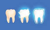 Set of  clean and dirty tooth on blue background, clearing tooth process.
