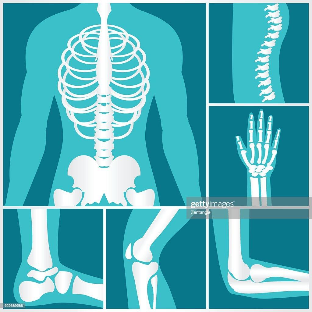 Set of xray of human skeletal.