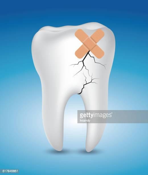 sick tooth - molar stock illustrations