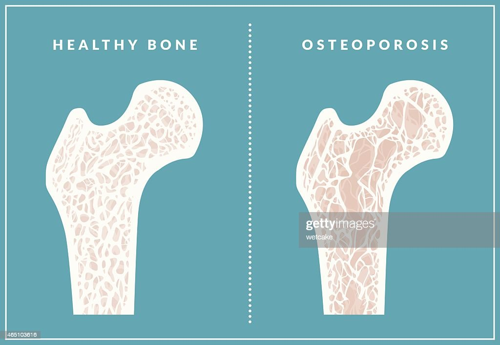 Simple illustration comparing healthy bone and osteoporosis : stock illustration