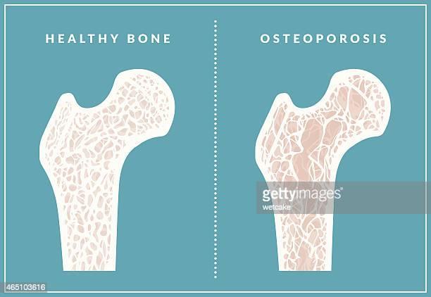 ilustraciones, imágenes clip art, dibujos animados e iconos de stock de la osteoporosis - femur