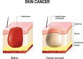 Skin Cancer Treatment.