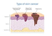 Skin layer have 3 Type of Cancer in one.