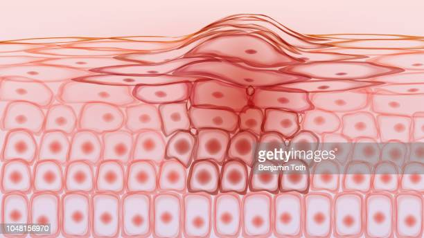 skin tissue cancerous cells, melanoma - tumor stock illustrations