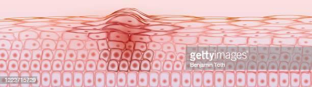 skin tissue cancerous cells, melanoma - dermis stock illustrations
