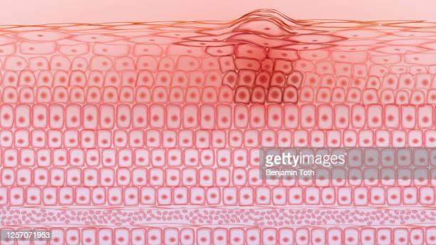 ilustraciones, imágenes clip art, dibujos animados e iconos de stock de células cancerosas del tejido cutáneo, melanoma - cancer de piel