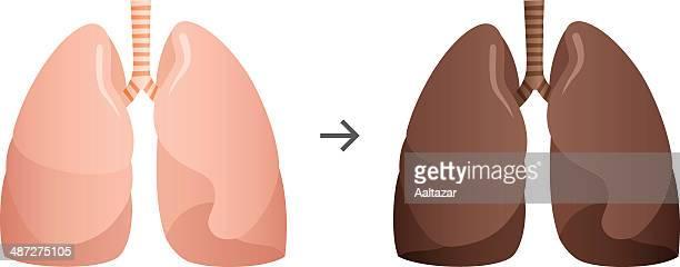 ilustraciones, imágenes clip art, dibujos animados e iconos de stock de fumador los pulmones - pulmones humanos