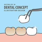 Square banner Putting new veneer on discolored tooth illustration vector on blue background. Dental concept.