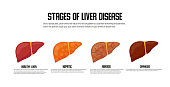 Stages of liver damage concept. Vector icon