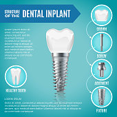 Teeth maquette. Structural elements of dental implant. Infographic for medicine poster