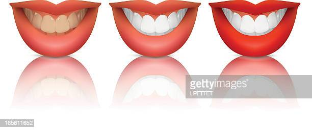 teeth whitening - vector illustration - brushing teeth stock illustrations