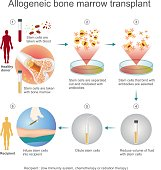 The allogeneic transplant process.