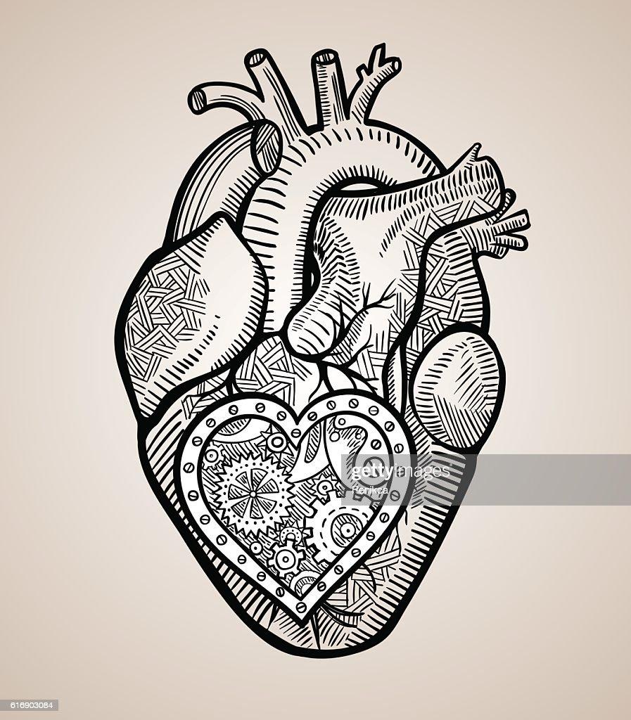 The human heart with a mechanical heart inside