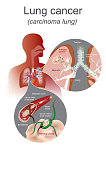 The Lung cancer is a malignant lung tumor characterized by uncontrolled cell growth in tissues of the lung. Lung system, Respiratory system. Illustration graphic.