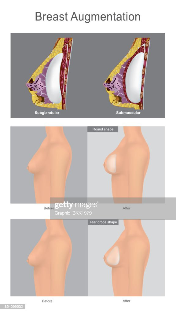 The Surgery Augmentation of the breast  using filled with saline-solution. This is popular cosmetic surgery for women. Illustration anatomy body part.