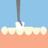 The veneer on the teeth. Flat design