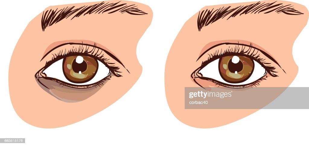The woman's face with dark circles under the eyes. The concept of care for eye skin. before and after
