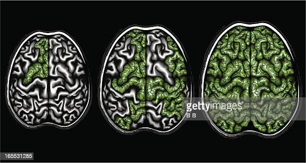 think ecologically - neurosurgery stock illustrations, clip art, cartoons, & icons