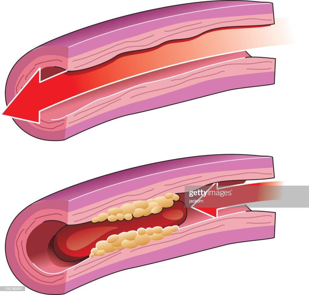 Thrombosis : Vector Art