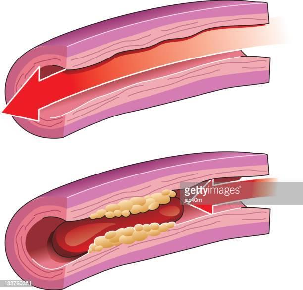 thrombosis - artery stock illustrations