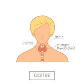 Thyroid gland anatomy of female