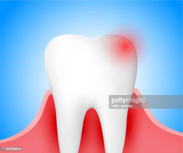 ilustraciones, imágenes clip art, dibujos animados e iconos de stock de dolor de diente - dolordemuelas