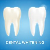 Tooth Veneer, Teeth Whitening, Whitening Toothpaste Isolated On A Background. Realistic Vector Illustration