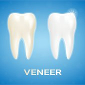 Tooth Veneer Whitening Dental Technician Isolated On A Background. Realistic Vector Illustration