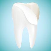 Tooth Veneer Whitening Dental Technician Vector Concept Isolated On A Background. Realistic Vector Illustration