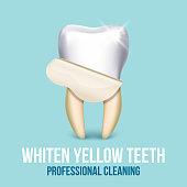 Tooth veneer whitening dental technician vector concept
