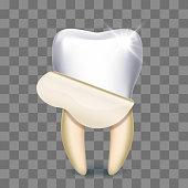 Tooth veneer whitening dental technician