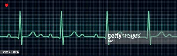 ekg trace - tracing stock illustrations