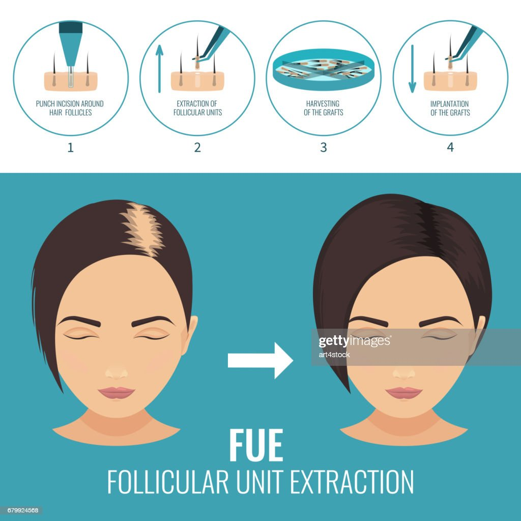 FUE treatment for women