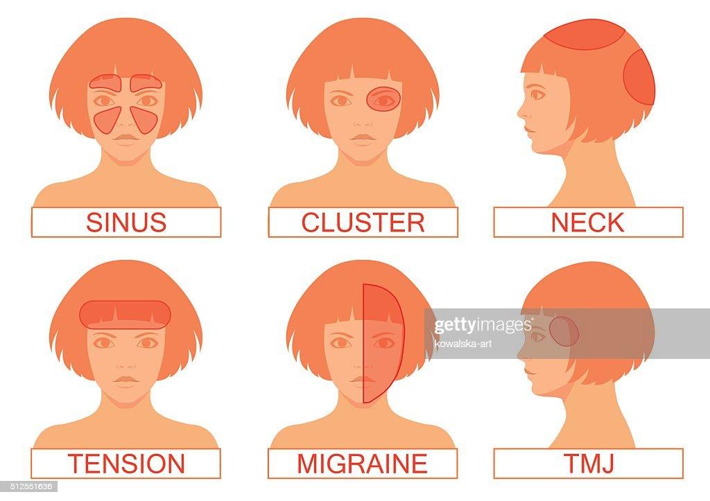 type of headache pain,