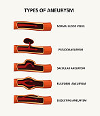 Types of aneurysm