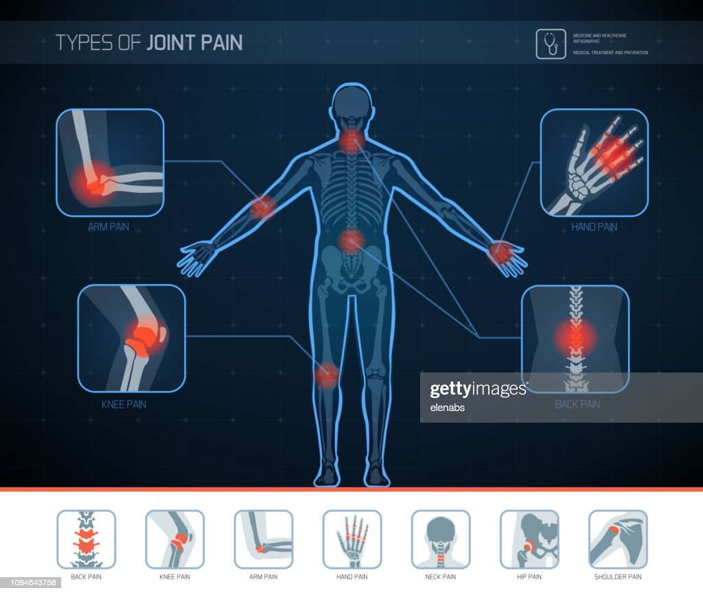 Types of joint pain infographic