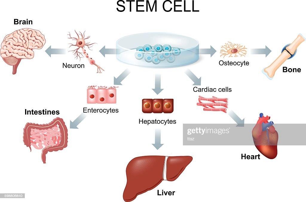 Using stem cells to treat disease