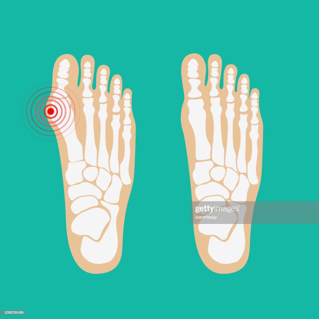 Valgus deformity of the big toe. Foot health care.