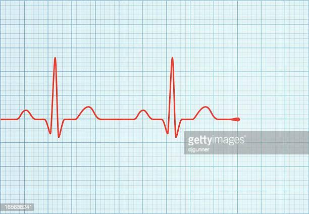 vector ecg trace - cardiac conduction system stock illustrations