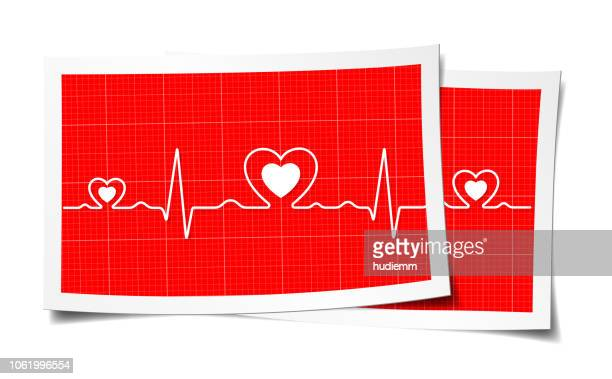 vector electrocardiogram and heart pattern in paper (health concept) - listening to heartbeat stock illustrations, clip art, cartoons, & icons