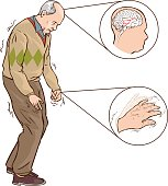 vector illustration of aOld man with Parkinson symptoms difficult walking